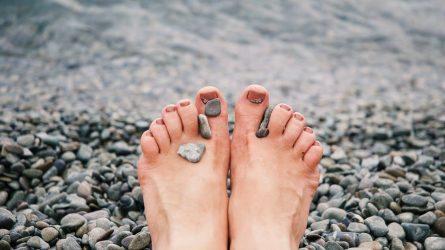 Pėdos pirmojo piršto iškrypimas. Kas tai?
