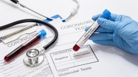 Rekomenduojama, kaip elgtis koronavirusinę infekciją nustačius ligoninėje
