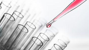 Laboratorijose gauti ėminiai bus tiriami pagal prioritetą