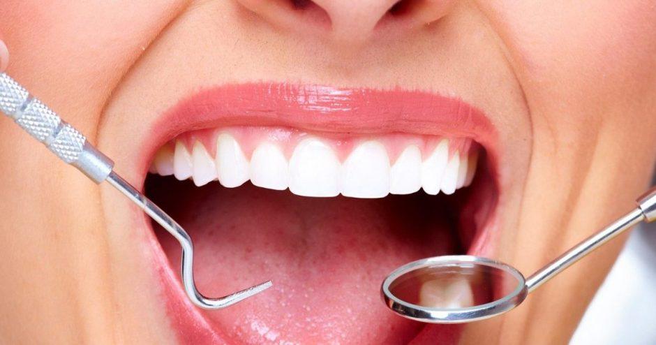 Papadent klinika Vilniuje rūpinasi jūsų dantų sveikata