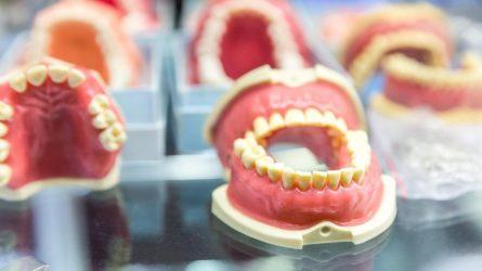 Dantų protezavimas – ką būtina žinoti prieš jį atliekant