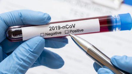 Praėjusią parą patvirtini 32 nauji koronaviruso infekcijos atvejai ir dar viena mirtis