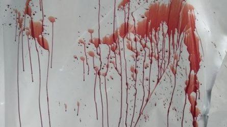 Pirmą kartą Lietuvoje pritaikytas kraujo pėdsakų rašto tyrimas, padėjo identifikuoti nužudymu įtariamą asmenį