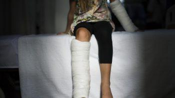 Vaikas susižeidė žaisdamas. Kodėl tėvus aplanko vaiko teisių apsaugos specialistas?