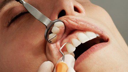 Atsitraukusios dantenos: ką vertėtų žinoti?