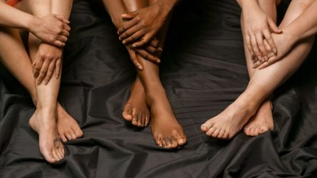 Vienas iš išsiplėtusių venų sprendimų: kompresinės pėdkelnės