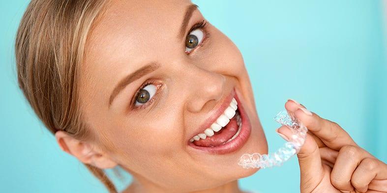 Kur galima rasti dantų balinimo Šiauliuose paslaugas?